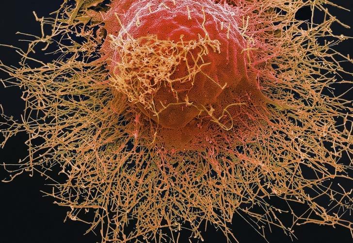 Вирус свиного гриппа атакует клетку человека