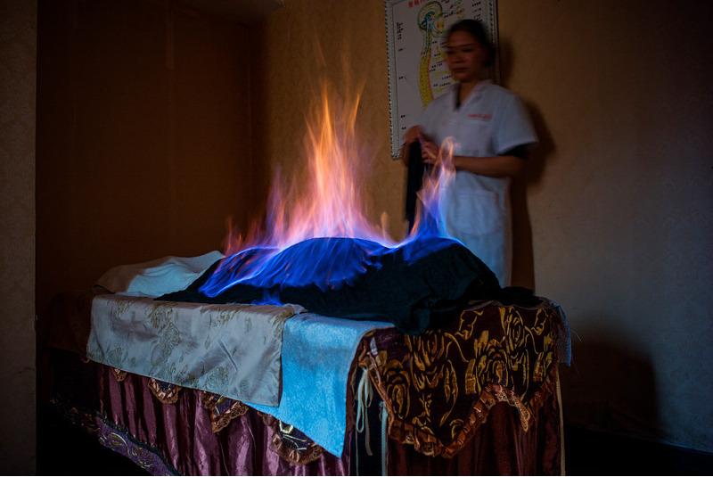 Местная терапия с огнем в Чэнду, Китай.
