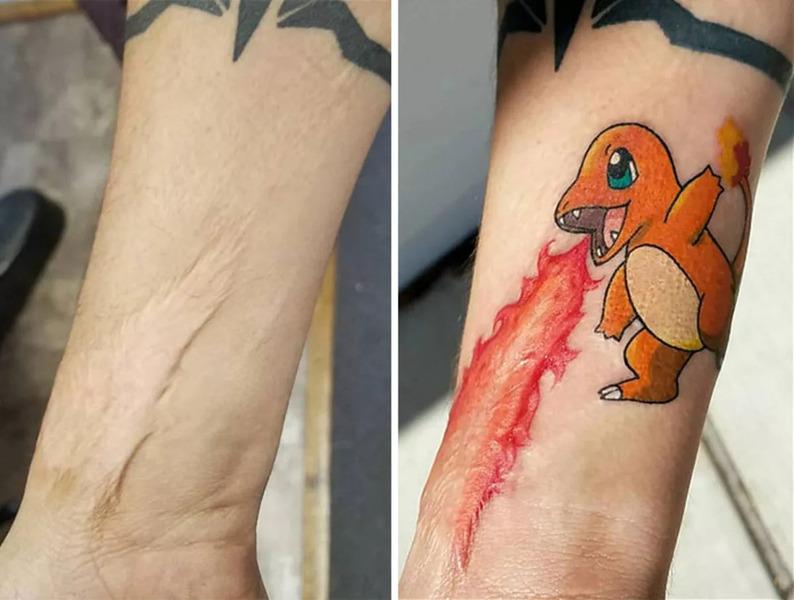 Креативные татуировки скрывающие шрамы